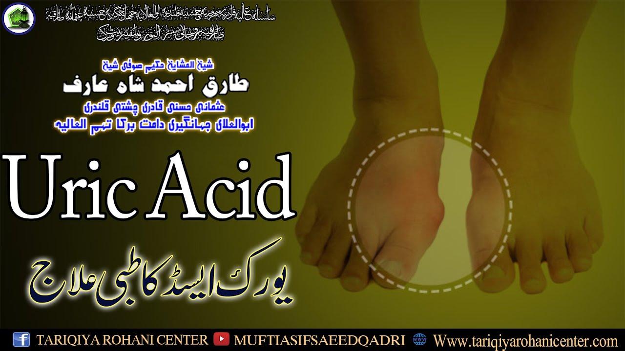 Uric Acid ka tibbi ilaj